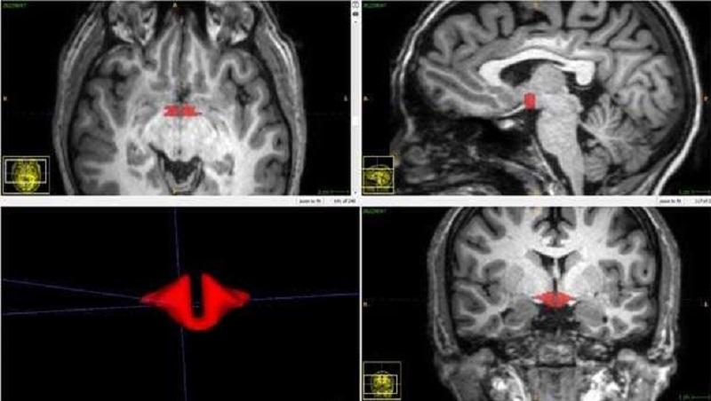 Brain Scan Depicting Hypothalamus